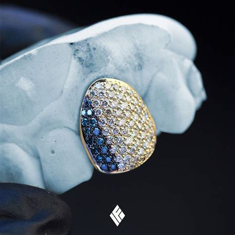 14K Yellow Gold Diamond Cap Grill Fully Iced Out With Blue