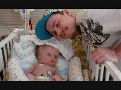Our Journey with Hydrocephalus - YouTube